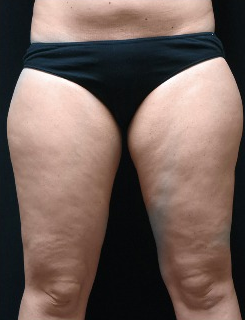 35-44 year old woman treated with CoolSculpting 1870900