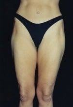 Thighplasty/Body Lift 1092874