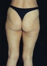 Thighplasty/Body Lift before 1092874