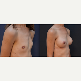 35-44 year old woman treated with Breast Implants before 3238803