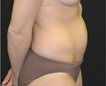 35-44 year old woman treated with Tummy Tuck before 3181831