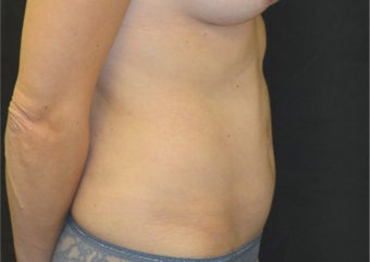 35-44 year old woman treated with Tummy Tuck after 3181831