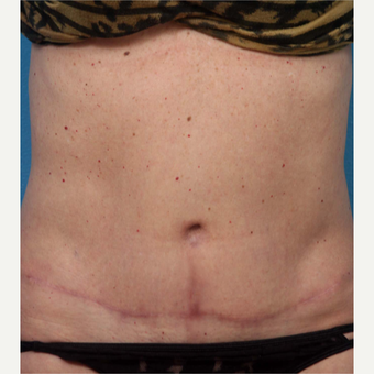 45-54 year old woman treated with Tummy Tuck after 3227368