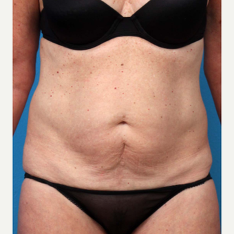 45-54 year old woman treated with Tummy Tuck before 3227368
