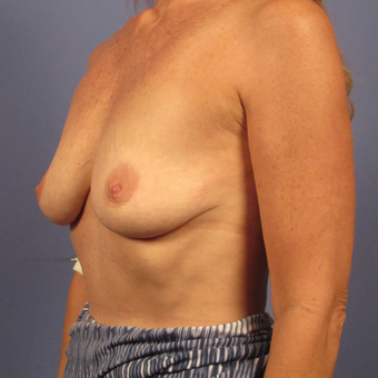 55-64 year old woman treated with Breast Augmentation before 2994828