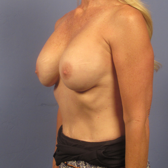 55-64 year old woman treated with Breast Augmentation after 2994828