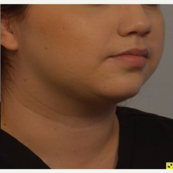 Young woman treated with Kybella after 2421951
