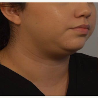 Young woman treated with Kybella before 2421951