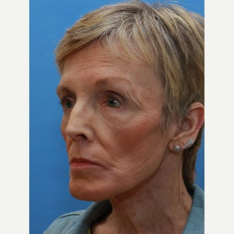 This lady wished reduction of her wrinkles after 1558316