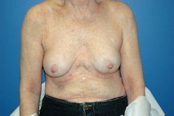 Breast implant removal after 1071268