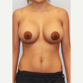 25-34 year old woman treated with Breast Implants after 3026978
