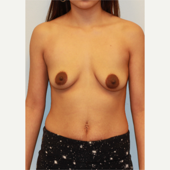 25-34 year old woman treated with Breast Implants before 3026978