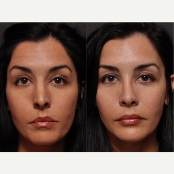Rhinoplasty - Softening a Harsh Nose for Harmony and Beauty before 3138409