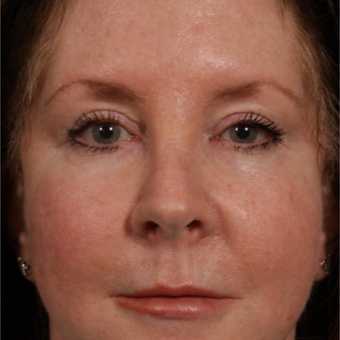 45-54 year old woman treated with Revision Rhinoplasty before 3208179