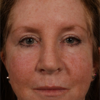 45-54 year old woman treated with Revision Rhinoplasty after 3208179
