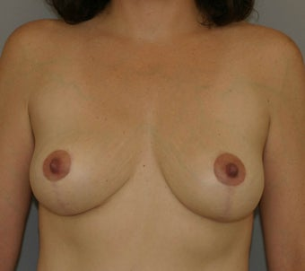 Breast Lift after 582568