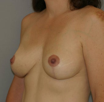Breast Lift 582568