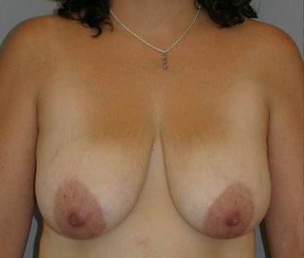 Breast Lift before 582568