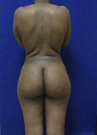 Brazilian Butt Lift via fat transfer after 966767