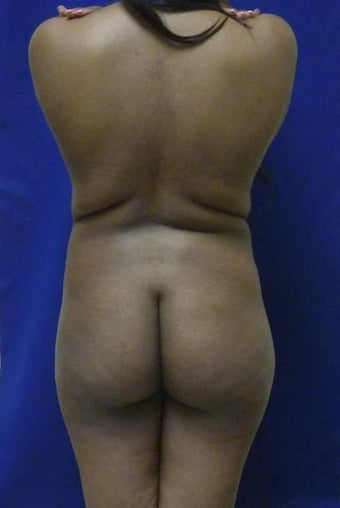 Brazilian Butt Lift via fat transfer before 966767