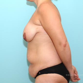 Mommy Makeover with Tummy Tuck and Breast Lift before 3507609