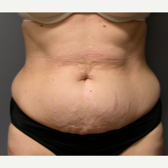 Liposuction - 55 year old female, 2 months post-op before 2696585