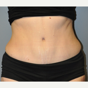 Liposuction - 55 year old female, 2 months post-op after 2696585