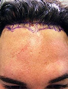 FUE – BHT Using Only Body (Leg) Hair to repair Hair Line before 196031