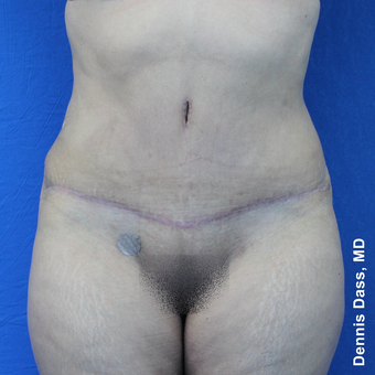 35-44 year old woman treated with Tummy Tuck after 3679959