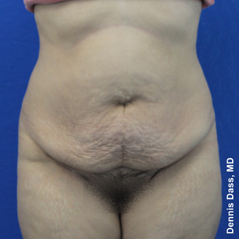 35-44 year old woman treated with Tummy Tuck before 3679959