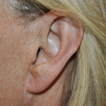 35-44 year old woman treated with Ear Lobe Surgery after 1593860