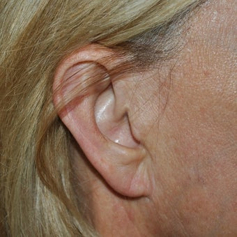 35-44 year old woman treated with Ear Lobe Surgery 1593860