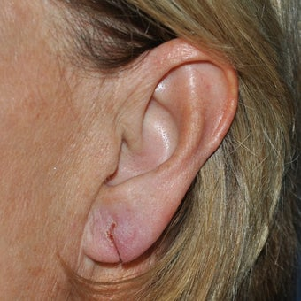 35-44 year old woman treated with Ear Lobe Surgery before 1593860