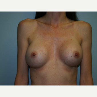 Breast Augmentation after 3562000