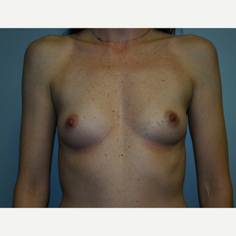 Breast Augmentation before 3562000
