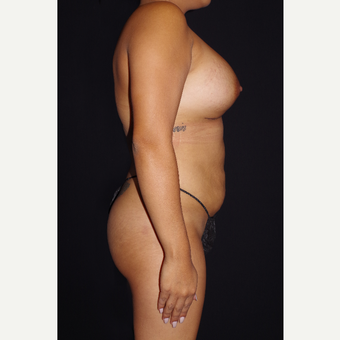 25-34 year old woman treated with Breast Implants and Buttock Augmentation after 3644288