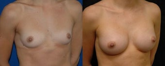 22 year old woman treated with Breast Augmentation before 3004704