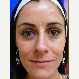 35-44 year old woman treated with Laser Resurfacing after 3710782