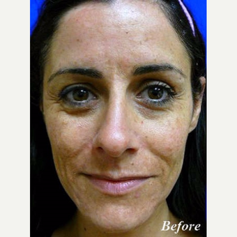 35-44 year old woman treated with Laser Resurfacing before 3710782