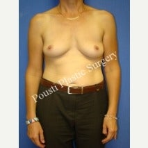 45-54 year old woman treated with Breast Implant Removal after 1556532
