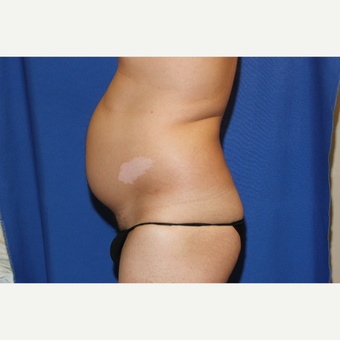 36 year old man treated with Liposculpture of the abdomen, waist, back, chest and torso before 3849820