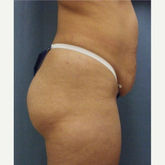 35-44 year old woman treated with Tummy Tuck 1972589