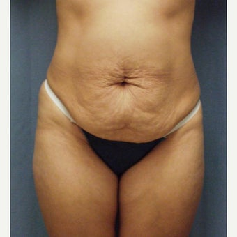 35-44 year old woman treated with Tummy Tuck before 1972589