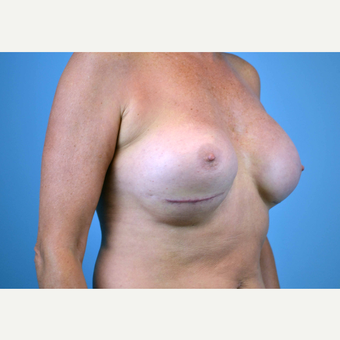 55-64 year old woman treated with Breast Implants before 3439950