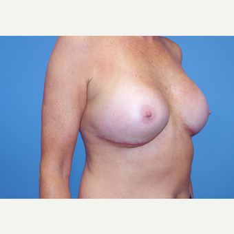 55-64 year old woman treated with Breast Implants after 3439950