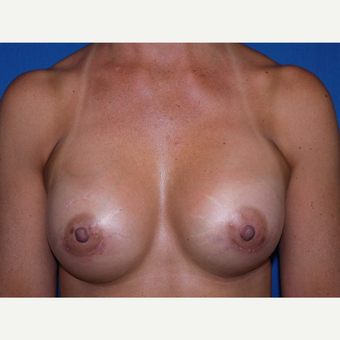 Breast Augmentation after 3744102