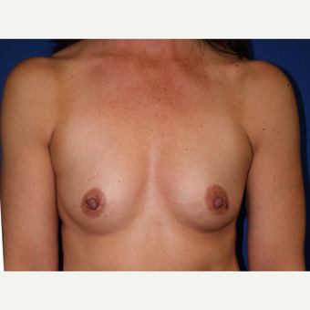 Breast Augmentation before 3744102