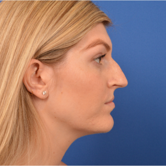 Rhinoplasty before 3220591