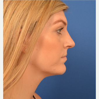 Rhinoplasty after 3220591