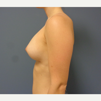 25-34 year old woman treated with Breast Augmentation after 3747018